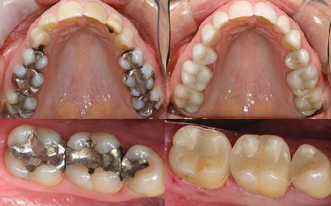 hàn sâu răng