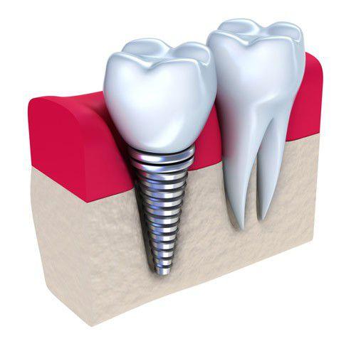 Làm răng implant có đau không?