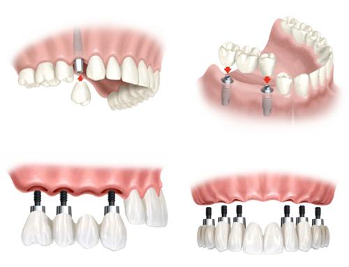 răng giả dùng được bao lâu?