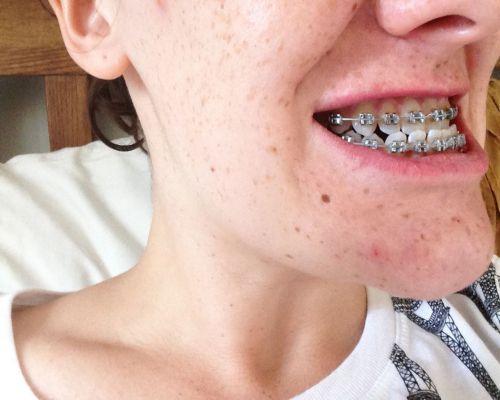 răng móm