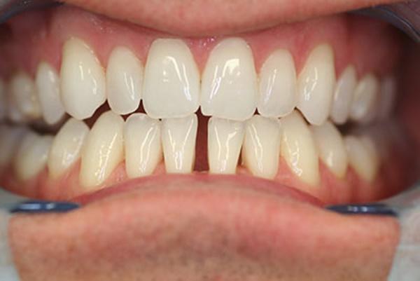 thế nào là răng thưa