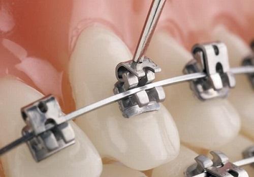 niềng răng để làm gì 5