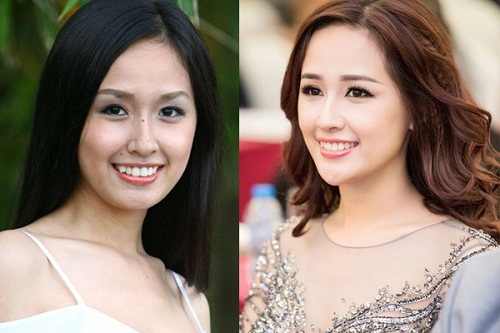 <center>Hoa hậu Mai Phương Thúy dẹp hơn sau khi niềng răng<center>