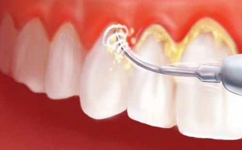 Điều trị mòn mặt răng