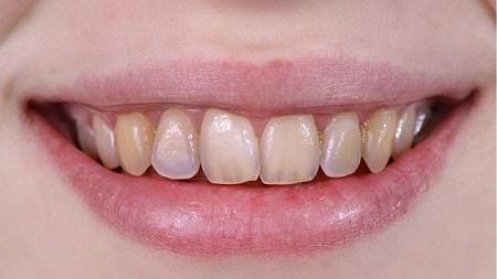 Nguyên nhân tình trạng mòn răng