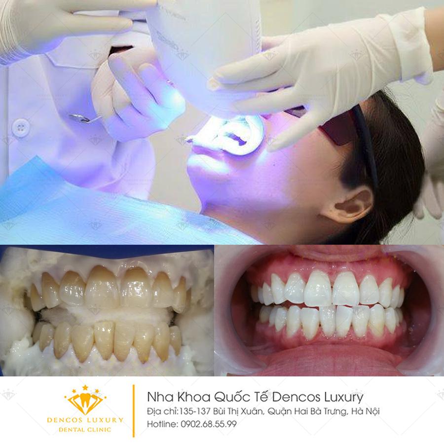 cách bảo vệ răng trắng