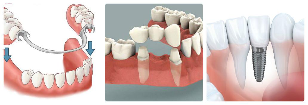 cách bảo vệ răng giả