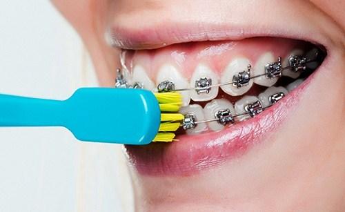 cách bảo vệ răng khi niềng