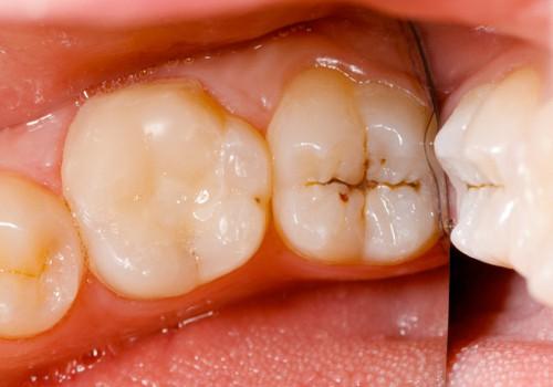Cách bảo vệ răng mới trám