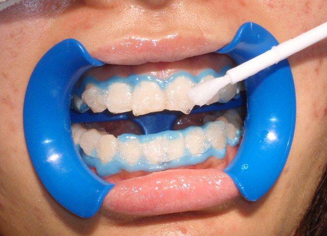 Lưu ý khi tẩy trắng răng bằng laser