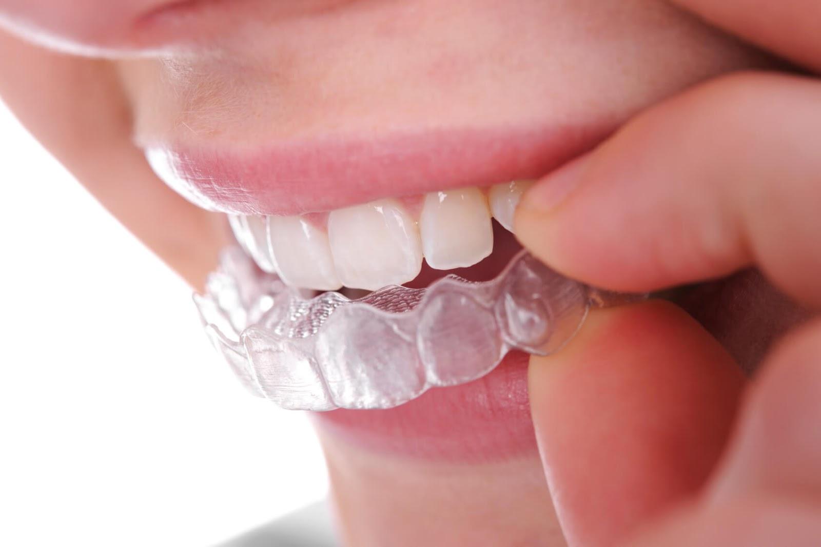Quy trình niềng răng không mắc cài