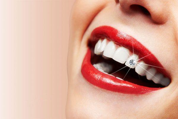 Có nên làm răng đính kim cương?