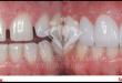 Vì sao phải hàn răng? Lợi ích của phương pháp hàn răng