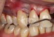 Tại sao nói bệnh nha chu là nguy hiểm nhất về răng miệng?