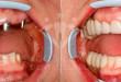 Cấy implant ở đâu tốt tại Hà Nội? – Review từ khách hàng