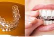 Những điều cần biết khi tẩy trắng răng bằng máng tại nhà? Hé lộ ít ai biết