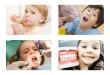 Nguyên nhân gây sâu răng ở trẻ em và cách điều trị hiệu quả