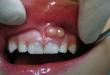 Phải làm sao khi viêm tủy răng có mủ?