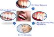 Quy trình lấy cao răng chuẩn xác và an toàn