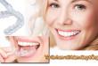 Những Lưu ý bạn cần biết rõ khi tẩy trắng răng tại nhà