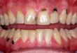 Trám răng và trường hợp nào nên trám răng bạn nên biết