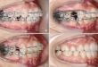 Tổng hợp cách chữa răng vẩu hiệu quả đáng để bạn thử ngay! <<Xem ngay