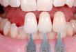 Xem ngay để biết có nên bọc mão răng sứ và quy trình bọc như thế nào?