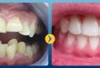 Nắn chỉnh răng vẩu cho hiệu quả cao nhất năm 2017