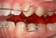 Răng hơi hô có nên niềng? Đâu là giải pháp tối ưu?