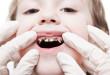 Trẻ emrăng sữa bị sâu có nên hàn để giữ răng?