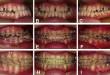 Niềng răng móm bao nhiêu tiền? – Quy trình niềng răng chi tiết.