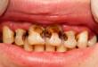 Sâu răng cửa – Giải pháp phù hợp cho từng mức độ răng sâu