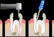 Viêm tủy răng: nguyên nhân và cách điều trị