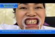 Đây là cách chỉnh hình răng thưa bằng cách an toàn và hiệu quả vĩnh viễn