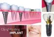 Mất 1 răng có thể trồng răng bằng cách nào hiệu quả nhất