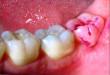 Răng khôn có trám được không? Chuyên gia giải thích