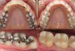 Hàn răng sâu có chấm dứt được sâu răng không?