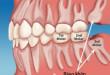 [Kiến thức nha khoa cơ bản] Răng khôn là răng số mấy?