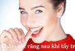 Hướng dẫn cách chăm sóc răng sau khi tẩy trắng bằng máng tẩy