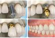Trồng răng implant giá bao nhiêu? – Bảng giá cập nhật 2020 mới nhất