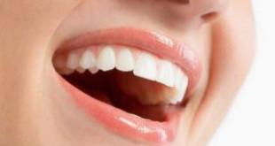 Làm gì để răng trắng hơn câu trả lời từ chuyên gia
