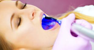 Xóa tan nỗi lo tẩy trắng răng bằng laser có hại không? Cùng xem bài này