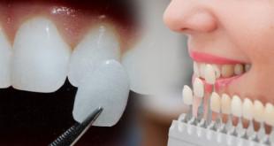 Dán sứ veneer  – Đỉnh cao công nghệ thẩm mỹ răng sứ 2020