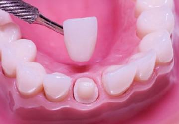 Làm mão răng sứ có đau không? Chuyên mục hỏi – đáp