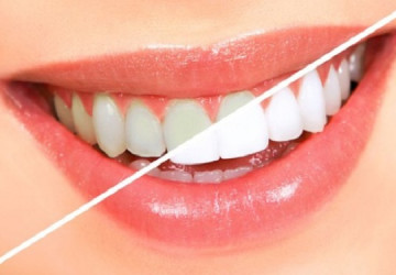 Bí mật cách tẩy trắng răng hiệu quả phương pháp làm đẹp an toàn