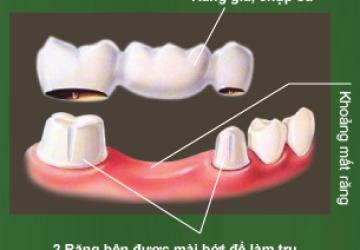 Cầu răng là gì? Bạn biết gì về nó ? – Xem ngay