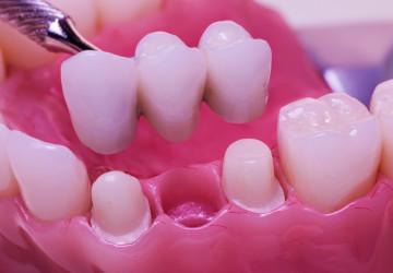 Thông tin chọn lọc từ A – Z về cầu răng sứ cho người làm răng