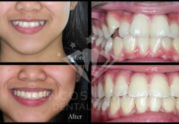 Có nên niềng răng không? – Giải đáp từ chuyên gia nha khoa
