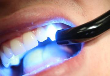 Hàn răng sâu như thế nào để đạt độ bền chắc và hiệu quả cao nhất?