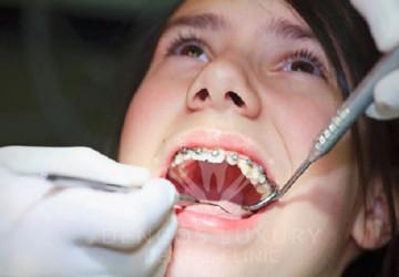 Niềng răng là gì? Niềng răng như thế nào?